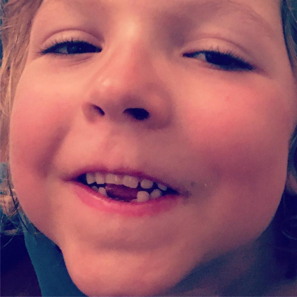 Lisa lost 2 teeth in two days! onlyfiveyearsold stopgrowingsofast nowitsnoresturn